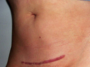 C-section Scar