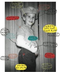 boy & injuries