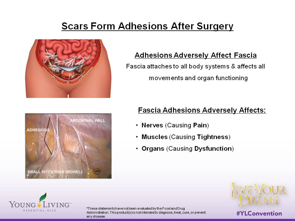 Adhesion After C Section Symptoms The Basic Anatomy Of A